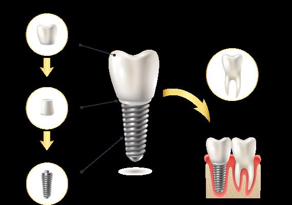 Hình ảnh cấu trúc răng Implant