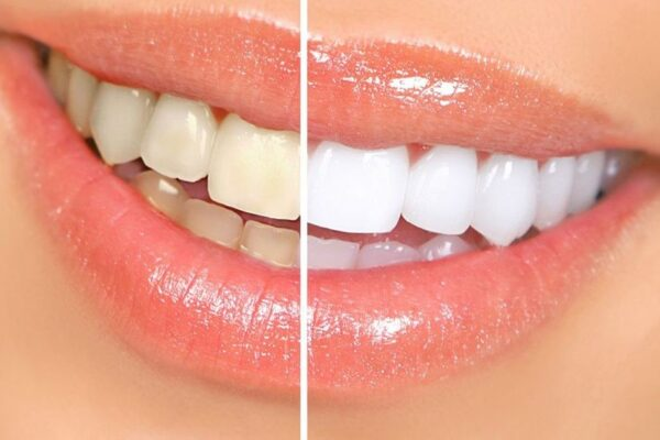 Thực phẩm giúp hàm răng trắng sáng