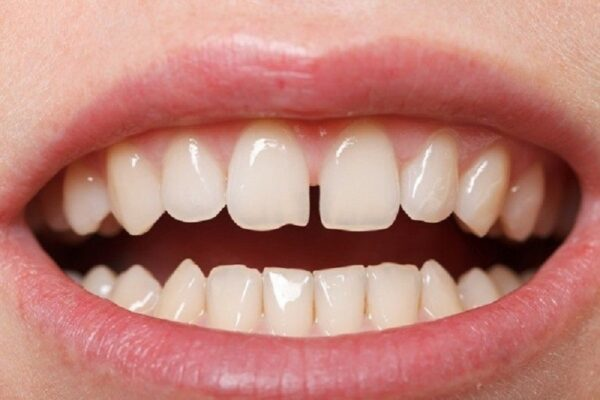 Răng thưa nhẹ có thể sử dụng phương pháp nắn răng bằng tay