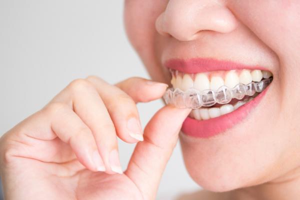 Phương pháp nắn chỉnh răng bằng khay invisalign hiệu quả, thẩm mỹ.