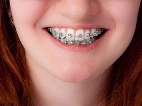Nắn răng hô hàm trên