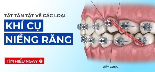 Các loại khí cụ niềng răng tốt nhất hiện nay là gì?