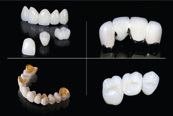 Mão răng là gì?