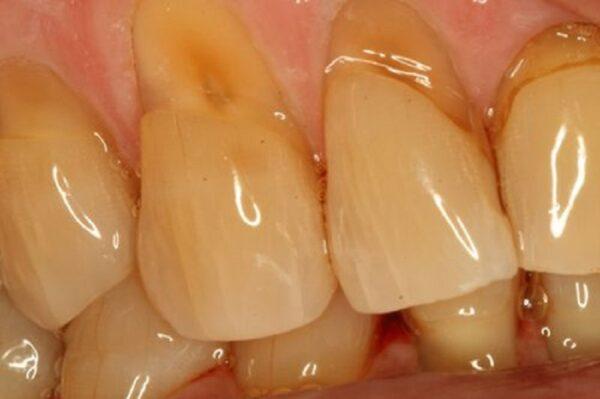 Mòn cổ chân răng có ảnh hưởng đến sức khỏe không?