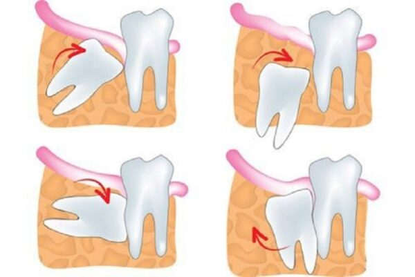 Hình ảnh minh họa về việc răng khôn mọc lệch