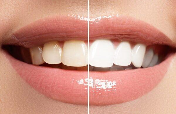 Tẩy trắng răng giúp nụ cười sáng và tự tin hơn