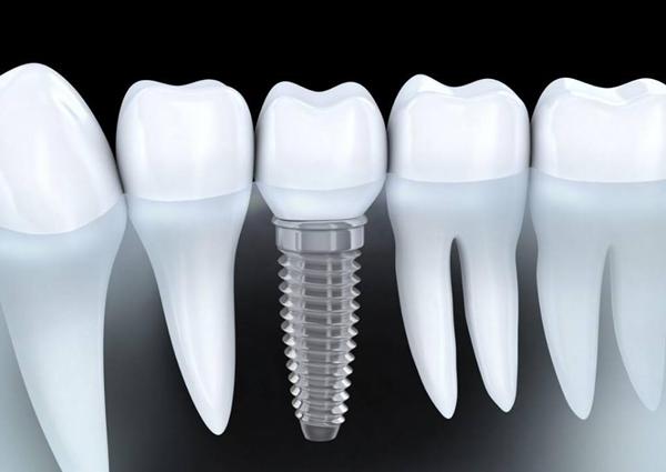 Quy trình trồng răng implant tại Art Dentist