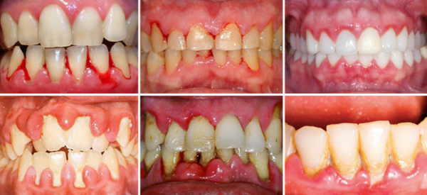 Một số hình ảnh cho thấy hiện tượng viêm nha chu